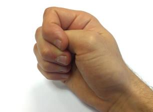 dolor de artritis en las manos puño