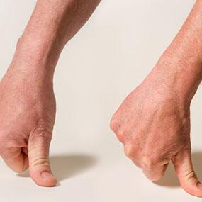 dolor de artritis en las manos aplanar dedo