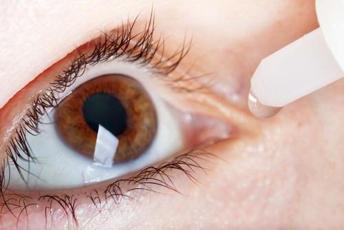 sintomas del síndrome del ojo seco