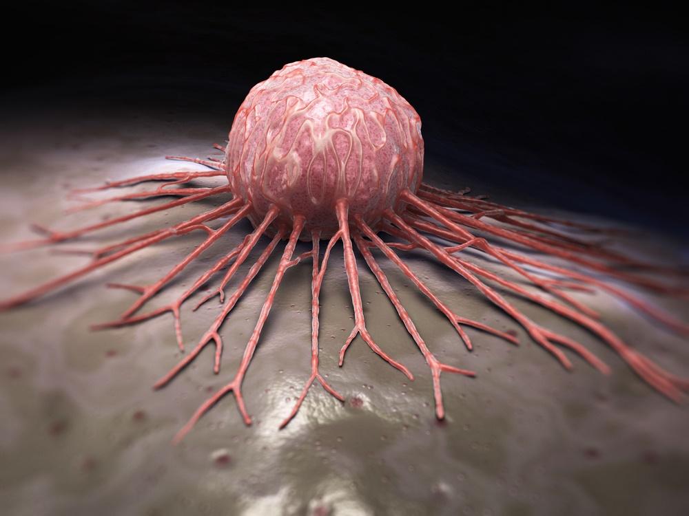 Resultado de imagen para cáncer