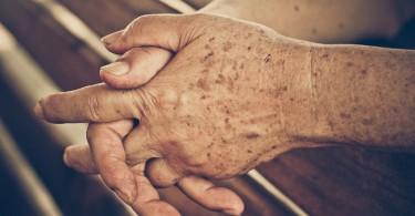 El uso diario de estos objetos puede manchar la piel