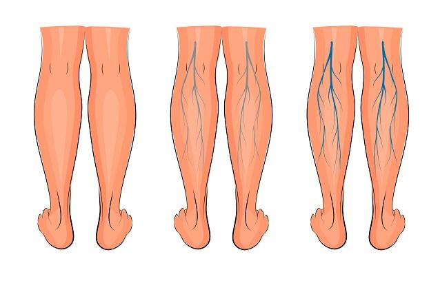 causas de la flebitis