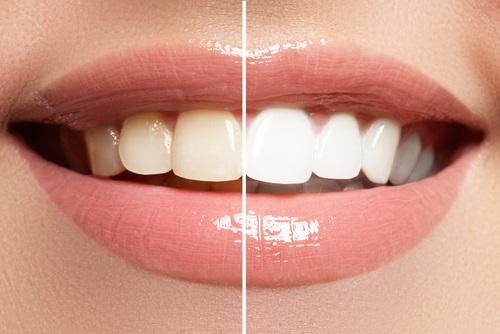 la importancia de la higiene bucal