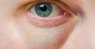 remedios para los ojos hinchados