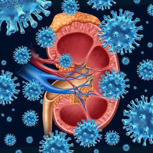 cálculos renales infección