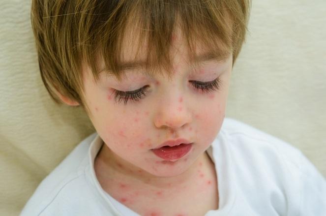 La varicela en los niños