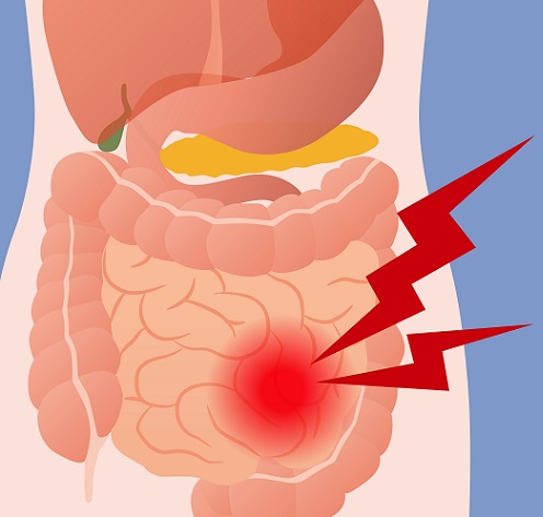 apendicitis y el dolor abdominal
