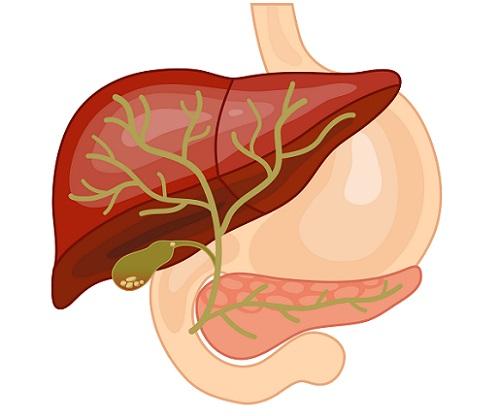 cálculos biliares producen dolor abdominal
