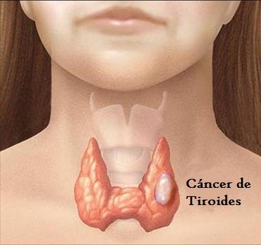 cáncer tiroides