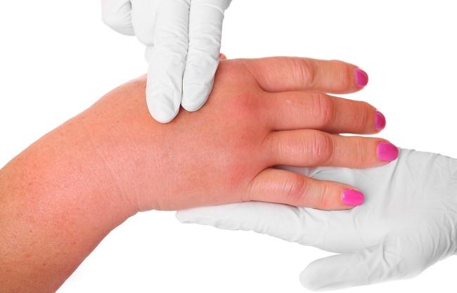 pies y manos hinchados dedos hinchados