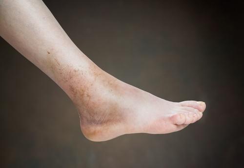 pies y manos hinchados