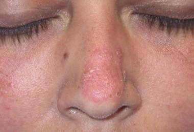 tratar el lupus