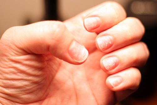 deficiencia de zinc y uñas quebradizas