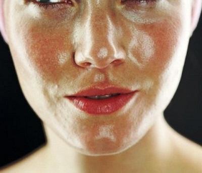 salud de la piel con aceite de almendras