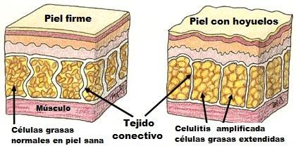 bebida secreta para disminuir la celulitis