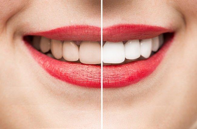 cómo blanquear los dientes con remadios caseros