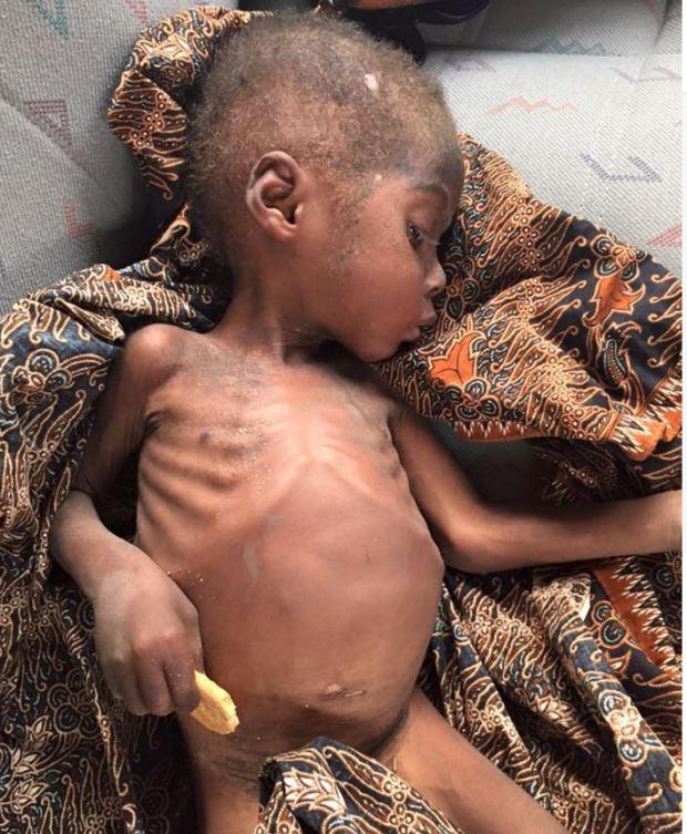 rescate de niño de dos años africano