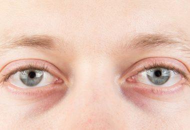 Cómo quitar las ojeras con remedios naturales