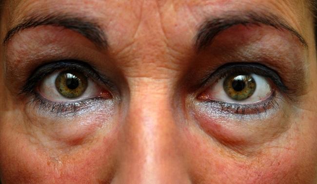 La hinchazón debajo de los ojos puede acabarse