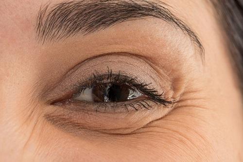 Ojos hinchados y como tratarlos