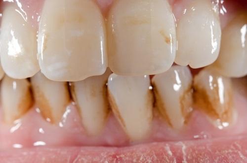dientes amarillos por tomar gaseosas