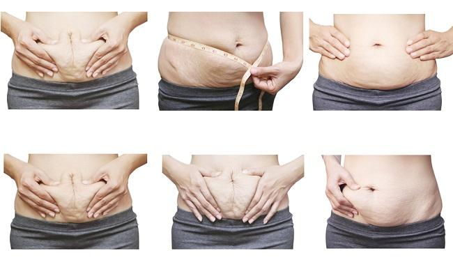 Como cuidarse de las estrías al bajar de peso