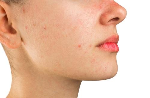 efectos y consecuencias de dormir maquillada