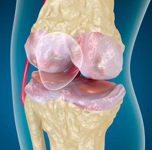 huesos y articulaciones más fuertes