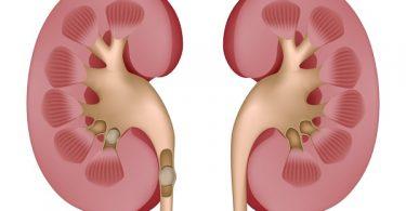 piedras en los riñones