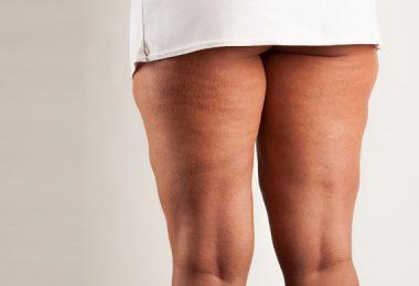 celulitis piernas muslos