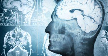 cerebro radiografías