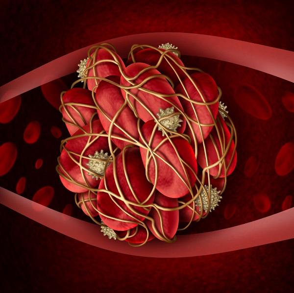 coágulos en la sangre