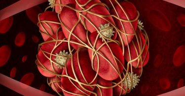 coágulo en la sangre coágulos