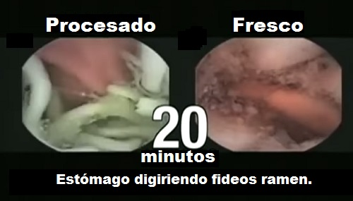 fideos ramen intestino