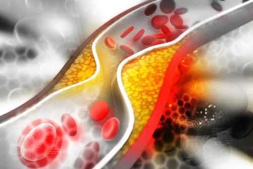 grasas saturadas y sus riesgos para la salud