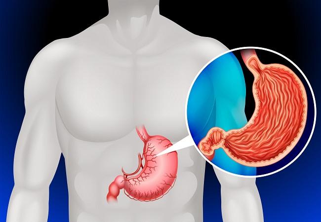 Cáncer de estómago por comidas procesadas y alcohol