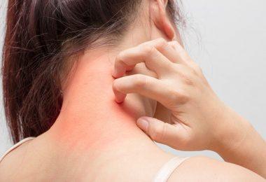 Preguntas para realizar la dermatólogo