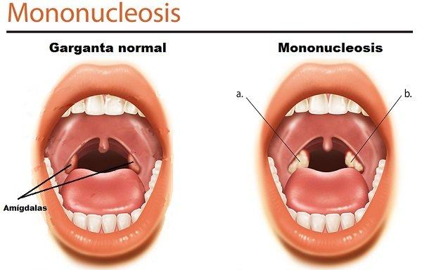 mononucleosis bolitas blancas en la garganta