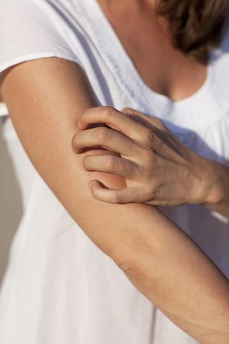 rascarse la piel debido a intolerancia a la histamina