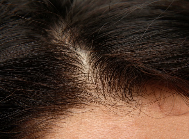 Mujer que necesita fortalecer el cuero cabelludo