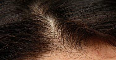 Cómo fortalecer el cuero cabelludo