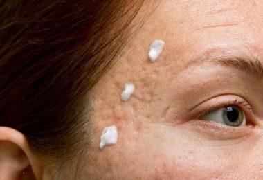 acné bicarbonato espinillas