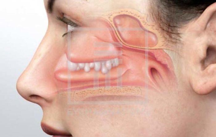 Conociendo los beneficios de la respiración nasal