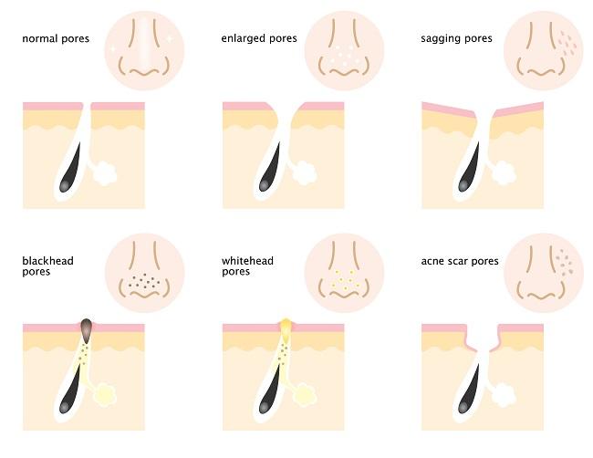 Gráfico que muestra las consecuencias de tener poros abiertos o dilatados