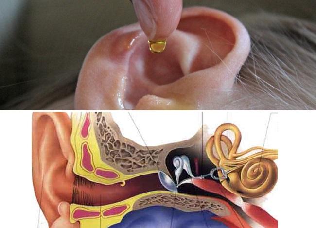 como eliminar el exceso de cera del oído