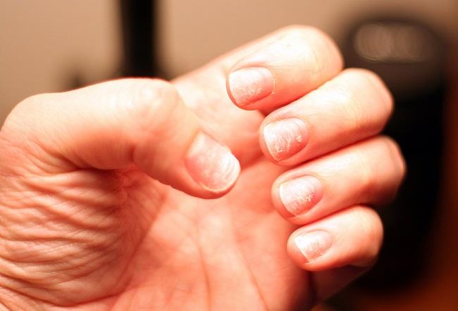 como tratar las uñas con ajo