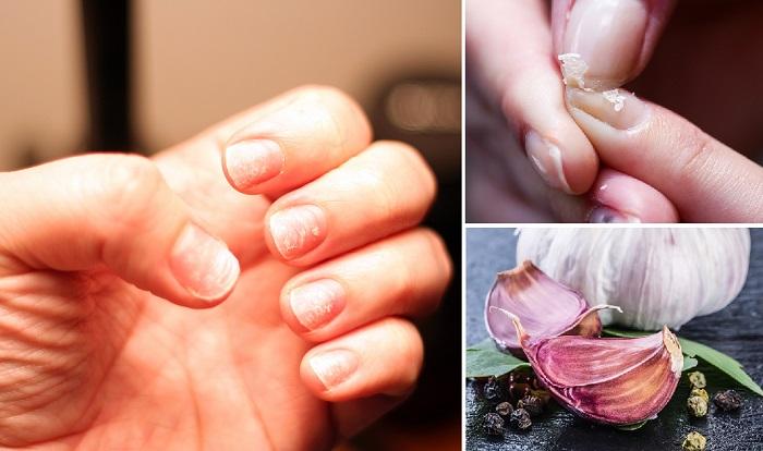 Cómo tener uñas más fuertes con el uso del ajo