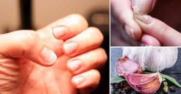 fortalecer uñas con ajo