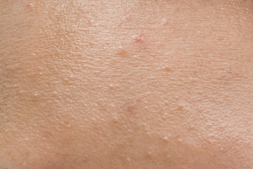 puntos negros y acné