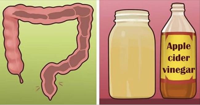 Elimina el exceso de heces en el intestino con solo 2 ingredientes y comienza a bajar de peso hoy